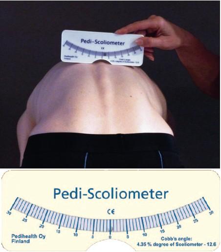 Pedi-Scoliometer